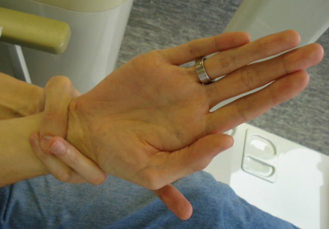 Extraordinary long fingers in Marfan syndrome: finger length index >> 1.00.