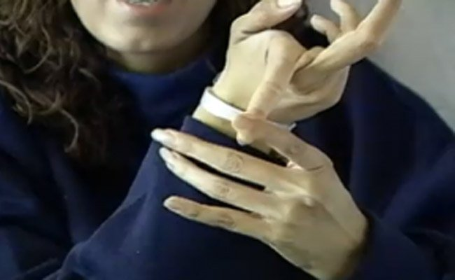 Marfan syndrome: flexibility sign in the fingers is typical.