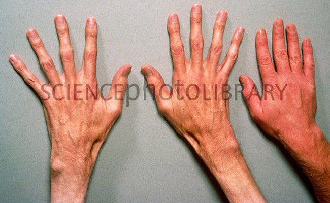 Marfan syndrome: long hands is a typical feature.