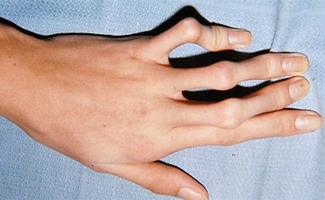 Marfan syndrome: spider-fingers is a very characteristic feature.