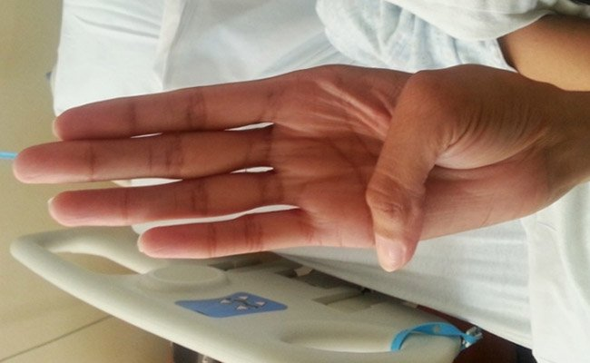 Marfan syndrome: the Steinberg sign for the thumb.