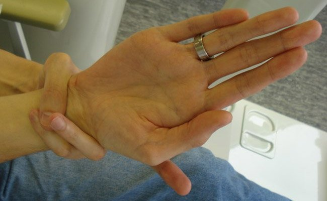 Marfan syndrome: the Walkder-Murdoch sign for the wrist.