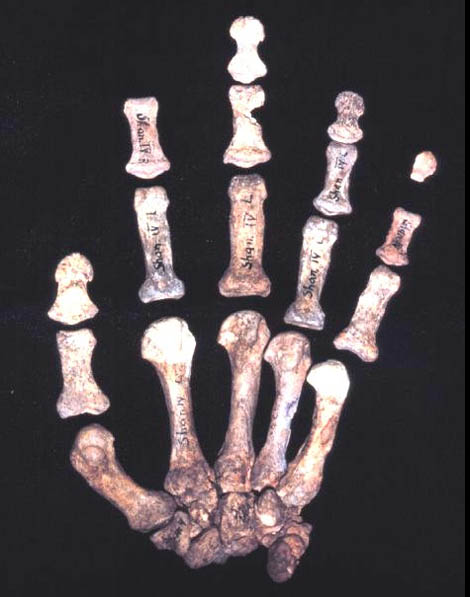 The left hand of 'Neanderthal Shanidar 4'.