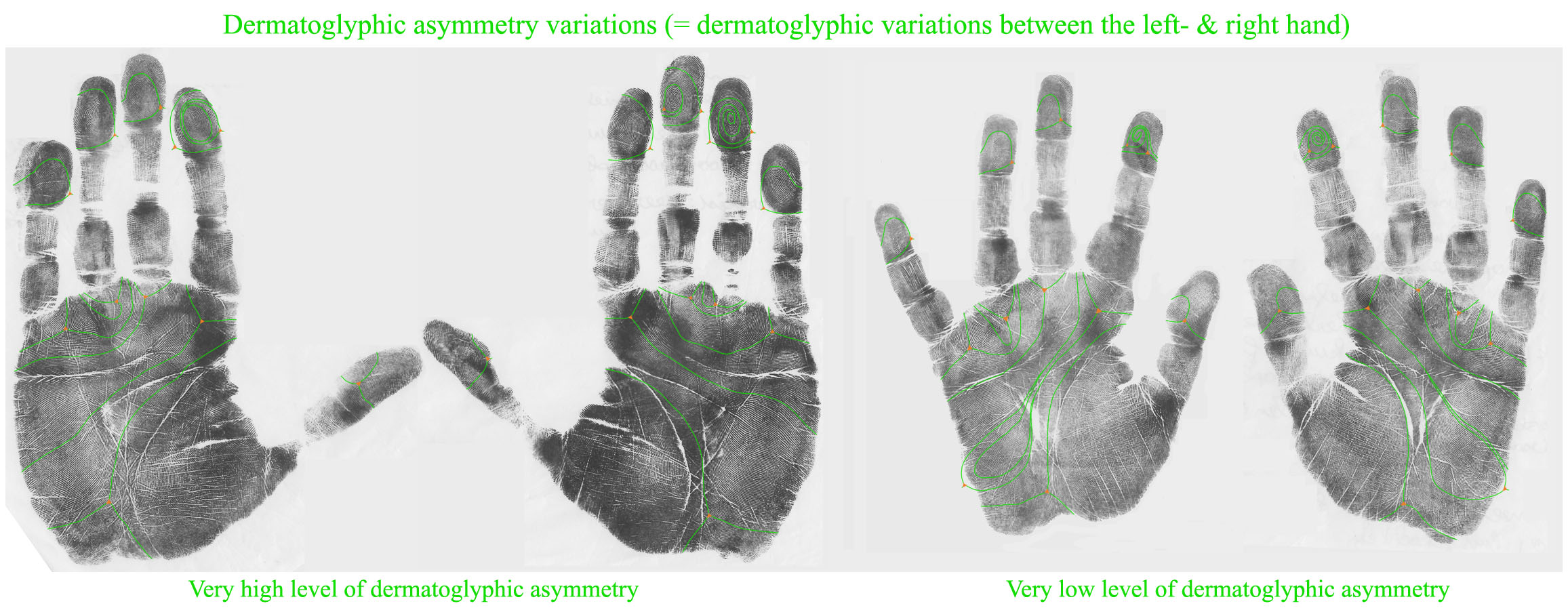 Dermatoglyphic asymmetry variations: very high versus very low.
