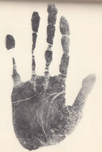 Schizophrenia & the hand: case 2.