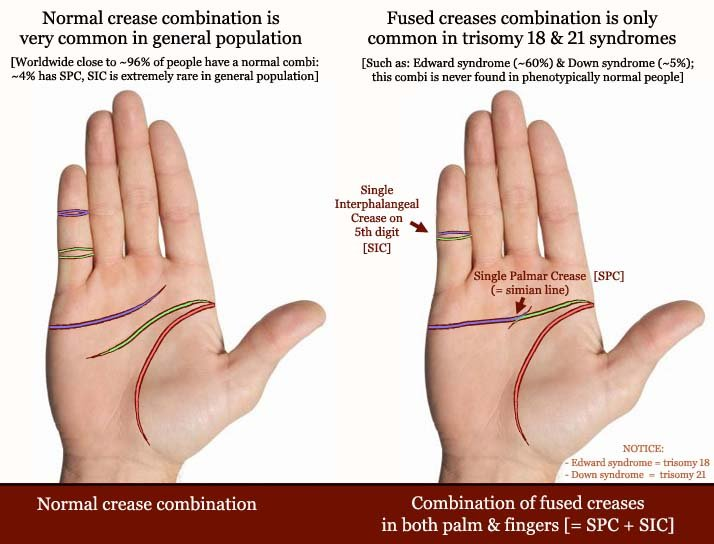 Trisomy 18 & 21 syndrome combination: single palmar crease (simian line) + single interphalangeal crease on digit 5.