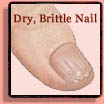 Brittle Fingernails & Toenails