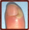 Paronychia according the Nail Tutor (edema nail fold)