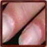 Paronychia according the Nail Tutor (erythema proximal fold)