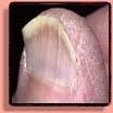 Koilonychia Fingernails & Toenails