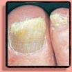 Fungus Fingernails & Toenails