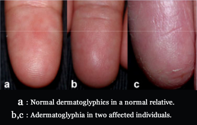 ADERMATOGLYPHIA: missing fingerprints is caused by SMARDCAD1 gene!