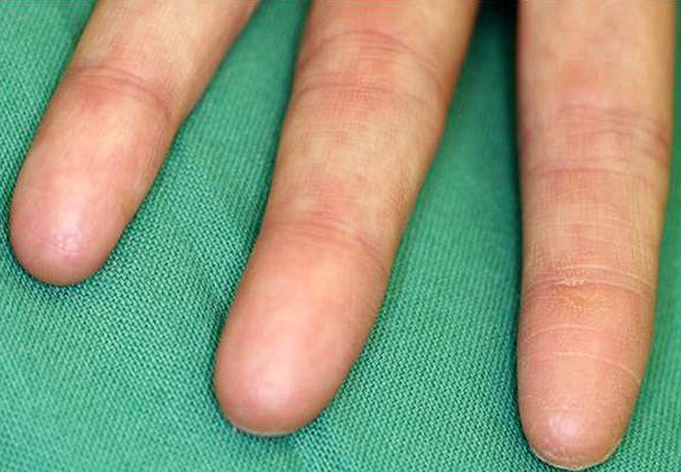 SMARCAD1 gene causes adermatoglyphia - no fingerprints.
