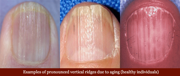 Examples of vertical fingernail due to aging.