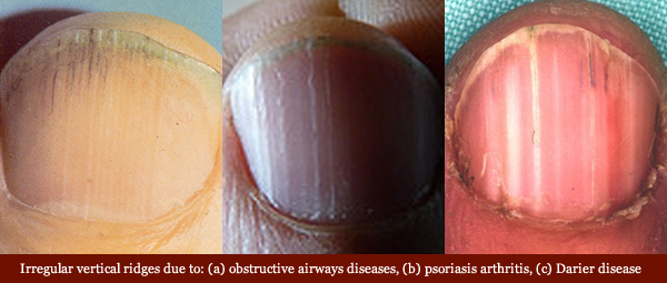 Examples of vertical fingernail ridges in diseases: obstructive airways, psoriasis arthritis, and Darier disease.