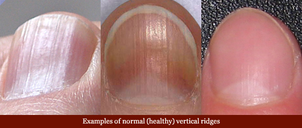 Examples of normal vertical fingernail ridges.