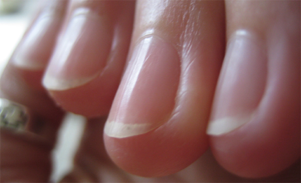 Vertical ridges in fingernails.