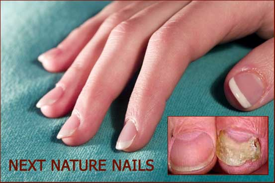Onychomycosis due to artificial nails.