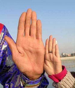 Bao Xishun's left hand.