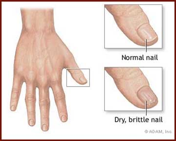 BRITTLE NAILS - What causes a dry brittle nail? Biotin vitamin can ...