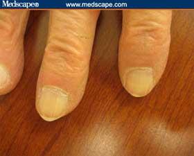 Brown-gray nails