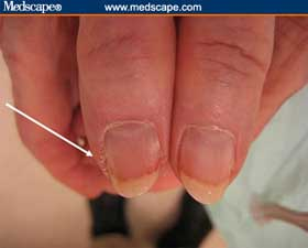 Chronic paronychia inflamation nail