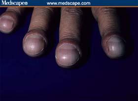 Clubbed fingernails