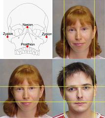 2D:4D and Sexually Dimorphic Facial Characteristics.