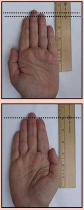 Finger Length & Arthritis