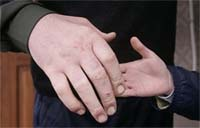 Leonid Stadnyk's right hand.