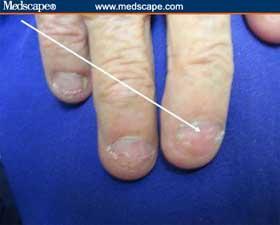 Leukonychia striae