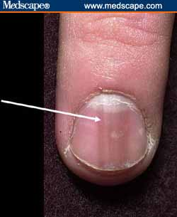 Nail the Problem--The Prevention and Cure of Toenail Infection