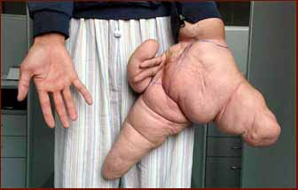 Macrodactyly patient Liu Hua used to have the largest hand in the world ever.