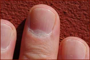 The use of human nails as bio-indicators!