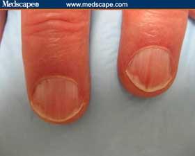 Pink and red nails Nails