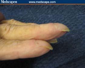 Nail thickening