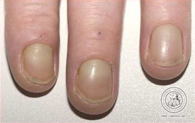 Yellow fingernails: causes & home remedies!