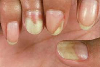Yellow Fingernails Example 2