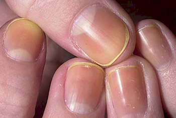 Yellow Fingernails Example 3