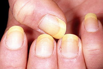 Yellow fingernails - example 1