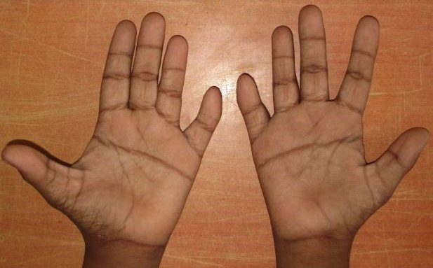 Single interdigital crease on both 5th fingers in a person who has Down syndrome.