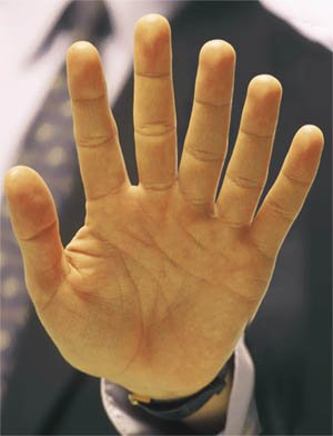Polydactyly involves the presence of extra fingers.