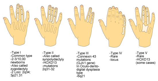 Syndactyly: webbed fingers.