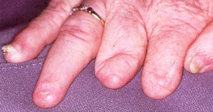 Ononychia Absence Of Fingernails