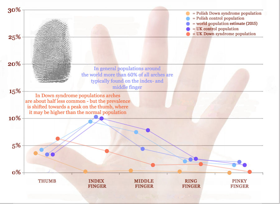 Arch fingerprint distribution across fingers in Down syndrome.