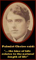 The hand of Cheiro - most famous palmist of all times! (+ his short life line theory) Cheiro-line-of-life-length-of-life