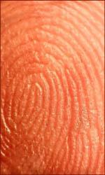 Dermatoglyphic skin ridges: a whorl fingerprint.
