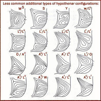 Additional dermatoglyphic hypothenar configurations - most are combinations of the basic types.