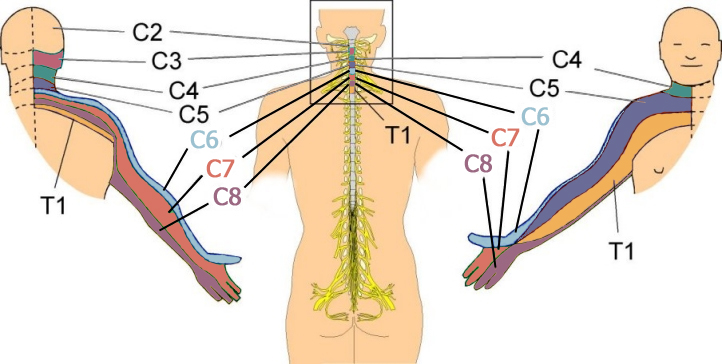 Hand dermatomes & spinal nerve connection.