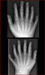 The X-ray hands of Devendra Harne.